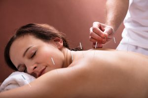 Woman receiving acupuncture and IVF practices